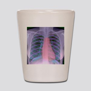 Heart, chest X-ray Shot Glass
