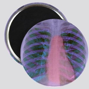 Heart, chest X-ray Magnet