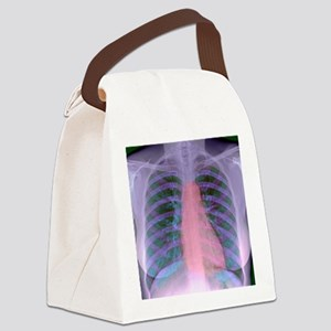 Heart, chest X-ray Canvas Lunch Bag