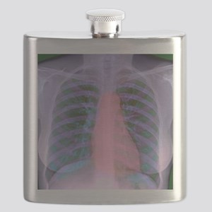 Heart, chest X-ray Flask
