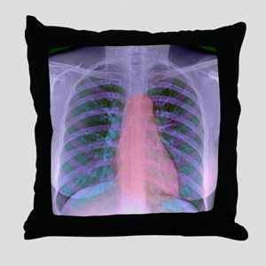 Heart, chest X-ray Throw Pillow