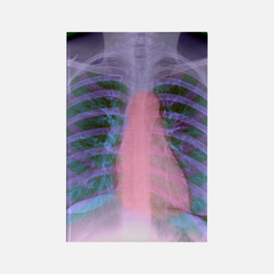 Heart, chest X-ray Rectangle Magnet