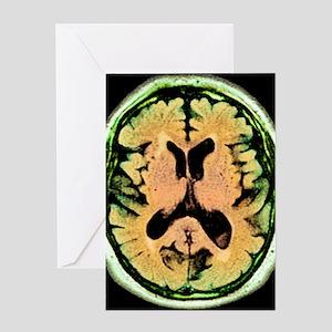 Alcoholic dementia, MRI scan Greeting Card