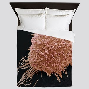 Cervical cancer cell, SEM Queen Duvet