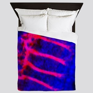 Inner ear hair cells, light micrograph Queen Duvet