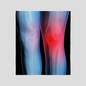 Knee pain, conceptual artwork Throw Blanket