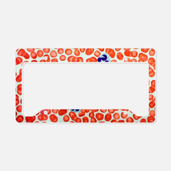 Human blood cells, light micr License Plate Holder