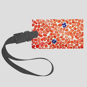 Human blood cells, light microgr Large Luggage Tag
