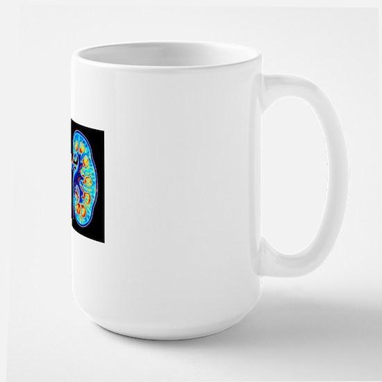 Human kidneys Large Mug
