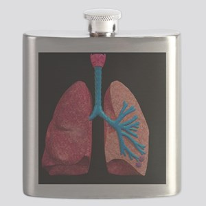 Human lungs Flask