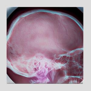 Human skull, X-ray Tile Coaster
