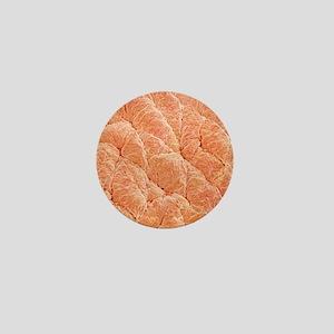 Human skin, SEM Mini Button