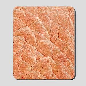 Human skin, SEM Mousepad