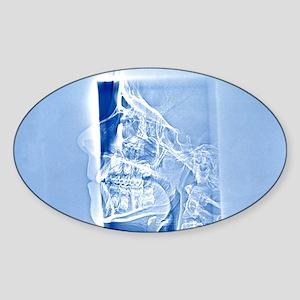Human skull, X-ray Sticker (Oval)