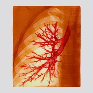 Lung bronchioles, X-ray Throw Blanket