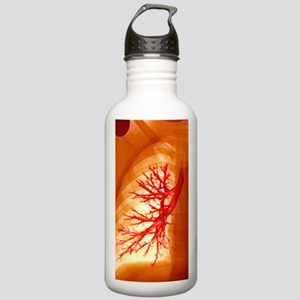 Lung bronchioles, X-ra Stainless Water Bottle 1.0L