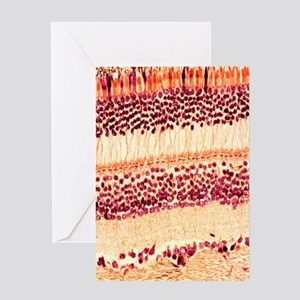 Retina, light micrograph Greeting Card
