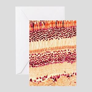 Retina, light micrograph Greeting Card