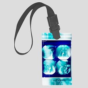 Small intestine, barium X-ray Large Luggage Tag