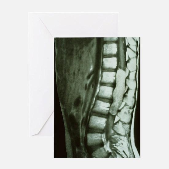 Spinal cord cancer MRI Greeting Card