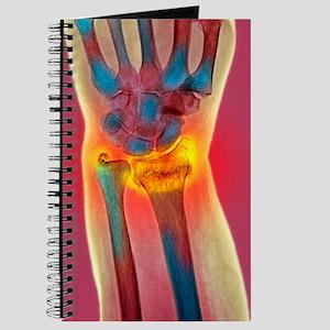 Broken wrist, X-ray Journal