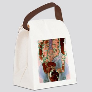 Large intestine, X-ray Canvas Lunch Bag