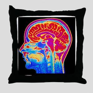MRI scan of normal brain Throw Pillow