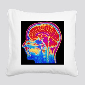 MRI scan of normal brain Square Canvas Pillow