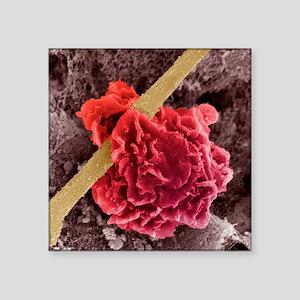 "Macrophage ingesting debris Square Sticker 3"" x 3"""
