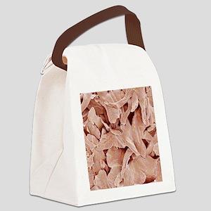 Nail flakes, SEM Canvas Lunch Bag