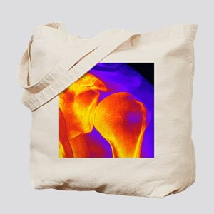 Shoulder joint X-ray Tote Bag