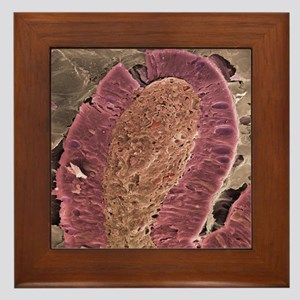 Small intestine villus, SEM Framed Tile
