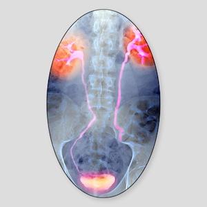 Urinary system, X-ray Sticker (Oval)