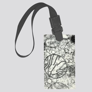 Transmission electron micrograph Large Luggage Tag