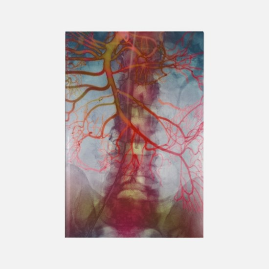 X-ray of arteries Rectangle Magnet