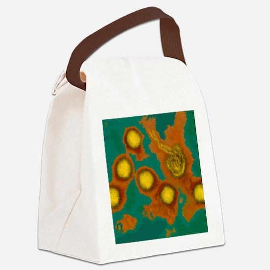 Rift Valley fever virus, TEM Canvas Lunch Bag