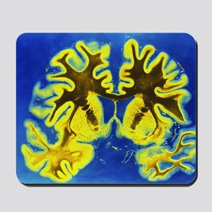Human brain Mousepad