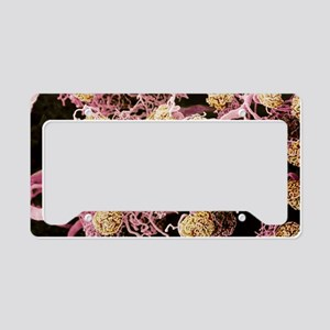 Kidney glomeruli, SEM License Plate Holder