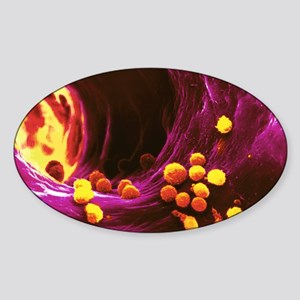 Liver artery, SEM Sticker (Oval)