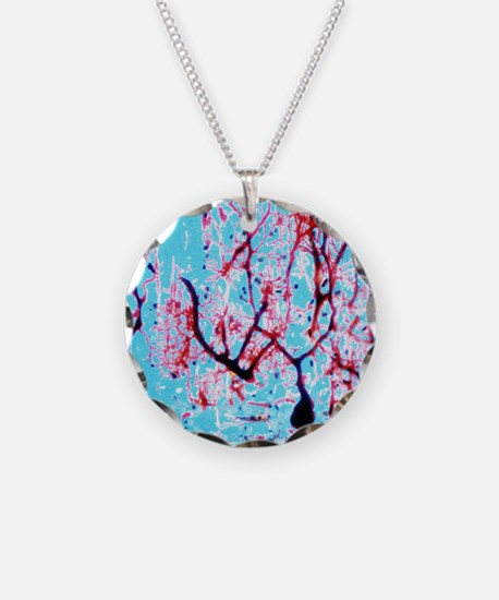 LM of cerebellar tissue with Necklace