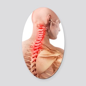 Back pain, conceptual artwork Oval Car Magnet