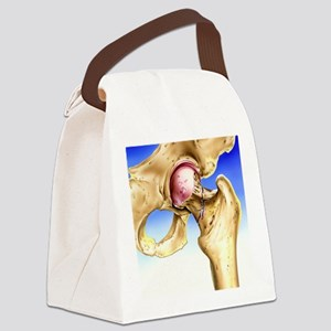 Osteoporosis Canvas Lunch Bag
