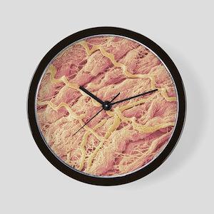 Dense connective tissue, SEM Wall Clock