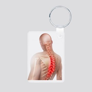 Back pain, conceptual artw Aluminum Photo Keychain