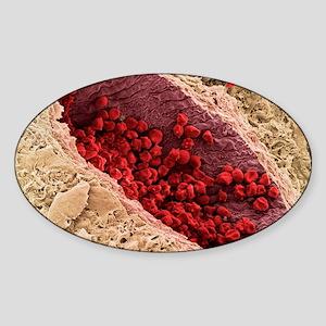 Red blood cells, SEM Sticker (Oval)