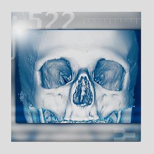 Skull, 3-D CT scan Tile Coaster