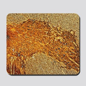 Spinal cord, light micrograph Mousepad