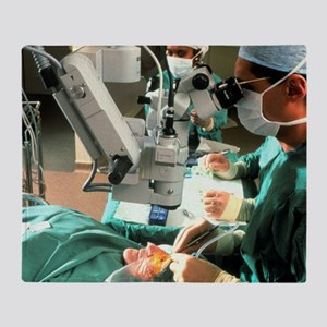 Surgeon removes cataracts using ultr Throw Blanket