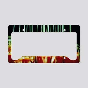 Suspended blood bags License Plate Holder