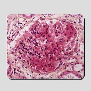 Systemic lupus erythematosus Mousepad